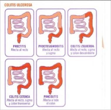 colitis-ulcerosa