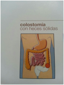 colostomía con heces solidas