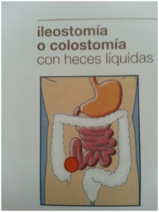 colostomia con heces liquidas