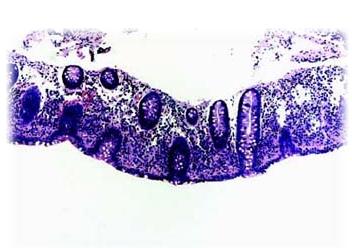colitis-microscopicas